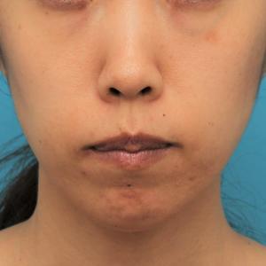 ガミースマイルを手術で治した40代女性の経過画像です。