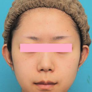 人中短縮手術(リップリフト)を行った20代女性の経過画像です。