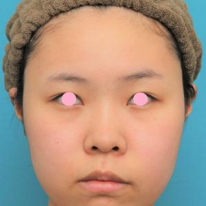 顔(頬~フェイスライン~顎下)の脂肪吸引をした20代女性の経過画像です。
