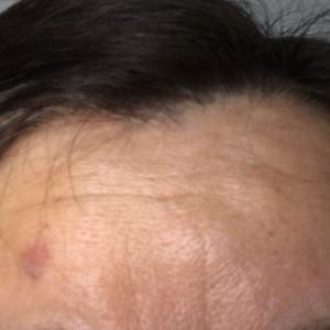 ホクロ除去の傷