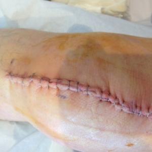 ナミ、膝の手術で入院中。ちゅう君はどしてる?