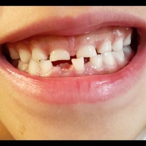 初めて歯が抜けました! 6歳女子