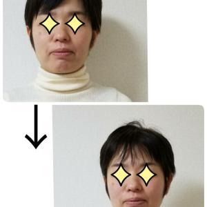輪郭(りんかく)が卵形になってきた小顔コース