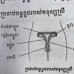 カンボジア式【避妊】のススメ