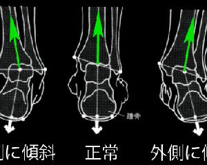 歩く時、足首が痛む人は・・・気を付けて!!