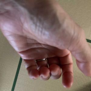 寝起きに左手の指がこわばり、開こうとしても痛くて開けない。今までは中指だけだったのが、中指・薬指・小指までこわばってしまった、、、整形外科でリウマチの血液検査をしてもらった。