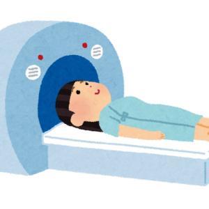 乳がん治療放射線位置決めCT