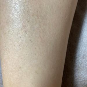 美肌脱毛・5回目から1ヶ月後の膝下