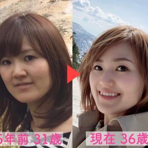 横浜の−5歳を叶える痛くない小顔矯正体験
