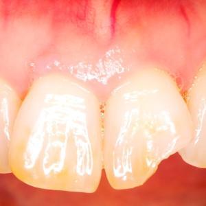 歯が欠けてしまったら・・・