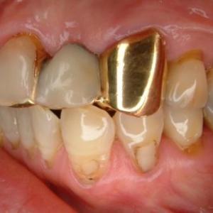 【歯は大切にケアをしていけば長持ちします】