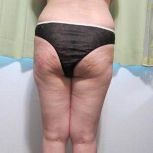 サプリや美容食材が体調不良や太る原因に!
