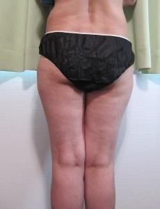 体重は標準でも太って見える方へ