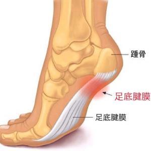 就寝中に足の裏がつる・・・足底腱膜炎かな?