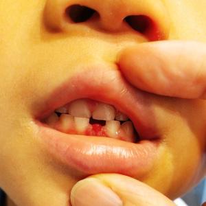 ☆乳歯が抜けました