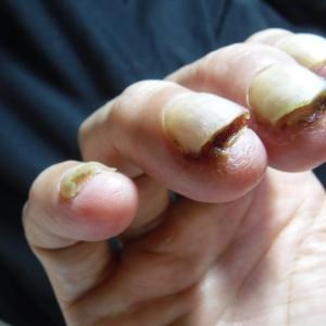 治験8クール目、日々悪化する爪の炎症