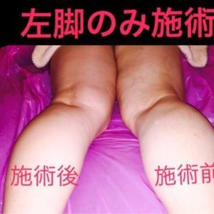 ■浮腫の原因は何?/豊橋のダイエットサロン