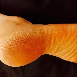 ■何故、足の裏がガサガサ硬くなるのか?/豊橋のダイエットサロン