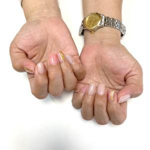 爪に表れる症状COVID-19の場合