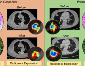 ガン免疫療法が効く人と効かない人をAIが見分ける