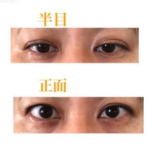 眼瞼下垂の手術から約5年