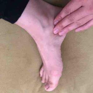 鵞足炎 がそくえん!? 内側 膝の痛み