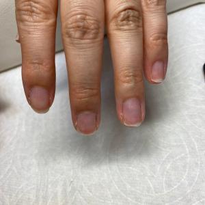 指先が驚く保湿効果       岐阜関市ネイル 脱毛 光フェイシャル