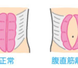 産後にできたおなかの茶色い線は何?骨盤の開き・ゆがみと茶色い線の関係