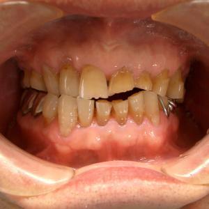 歯ぎしりの恐怖