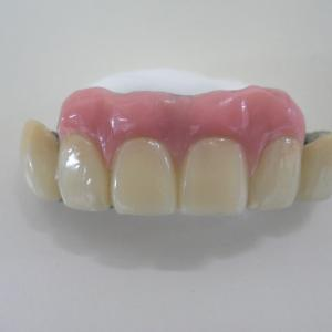 磁石で固定する入れ歯【インプラントが怖い方へ】