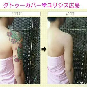 タトゥーの除去手術をするより隠す方法を結婚式場から聞きました