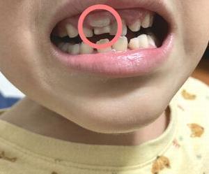 7歳6ヶ月の成長記録~懇談・乳歯と永久歯が並列問題・初めての居眠りなど~