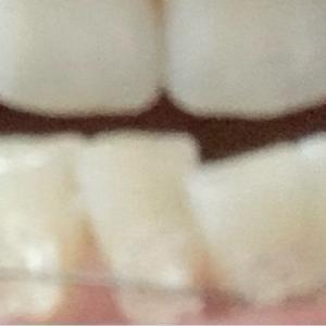 コロナ禍で密かに流行っている歯列矯正と#14癒しの夜ヨガ@B-life