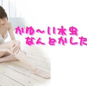 ☆お酢でカユ~イ水虫が治るってホント?!☆