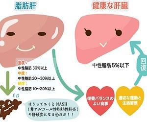 ☆お酒を飲まなくても肝臓がフォアグラに?!☆