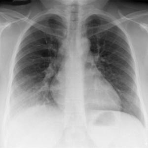 漢方医学から推測されるコロナ肺炎発症機序