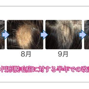 半年間の円形脱毛症改善記録