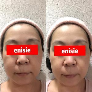 エニシーグローパックの引き締め 即効力がスゴイ!!