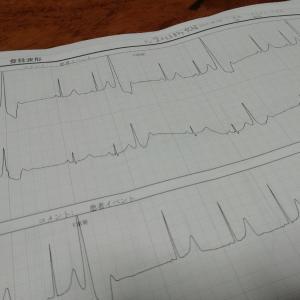 24時間心電図と心エコー