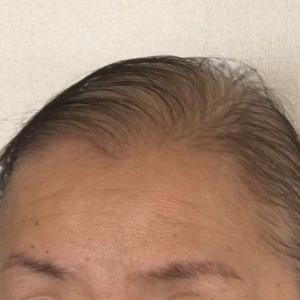 抗がん剤後の髪の毛 一挙公開 頭頂部編(写メあり)