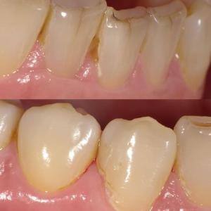 下の前歯は虫歯にならない⁉️