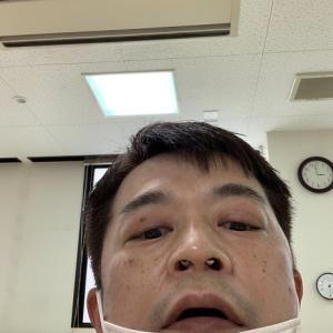 アレルギー性鼻炎について③手術編