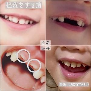歯の怪我の、経過報告。