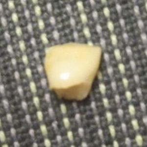 妹ちゃん・上の右前歯横の歯が抜けた!
