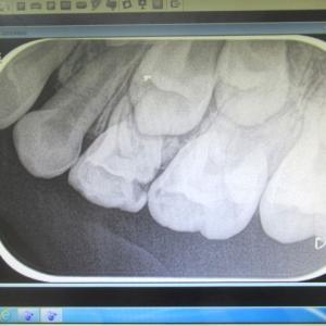 妹ちゃん・歯科検診~左上に大きな虫歯