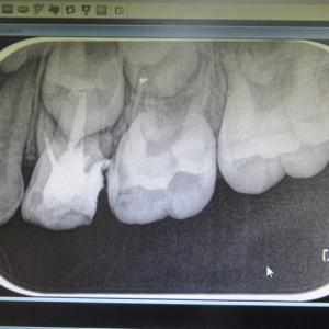 妹ちゃん・左上の歯の治療の続き