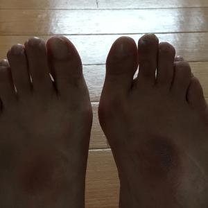 楽天マラソン 外反母趾防止