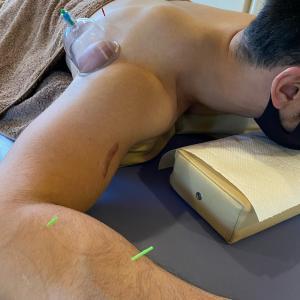 症例【トレーニングによる肩の痛み】