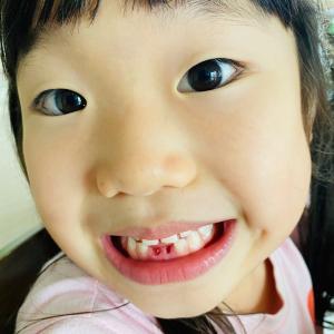 歯がぬけました!いや、抜きました。