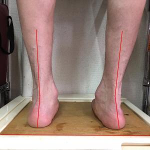 Pronation Feet
